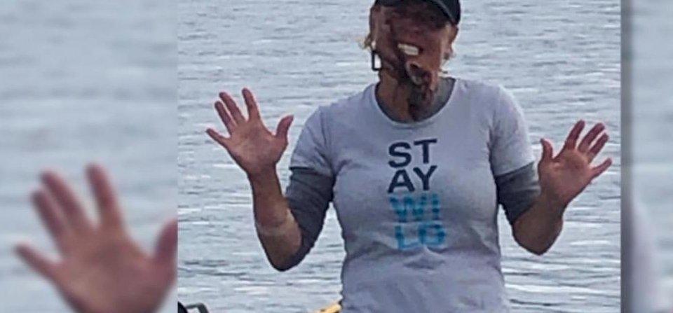 Egy nő poénból polipot tett az arcára – mutatjuk, mi történt ezután