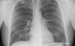 Óvszert találtak egy nő tüdejében, az orvosok lesokkoltak - így kerülhetett oda a gumi